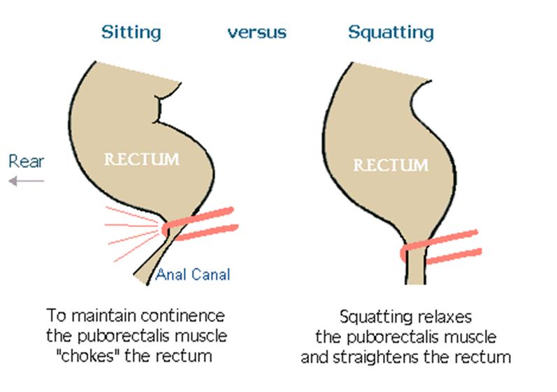 Should We Sit Or Squat Clear Colonics